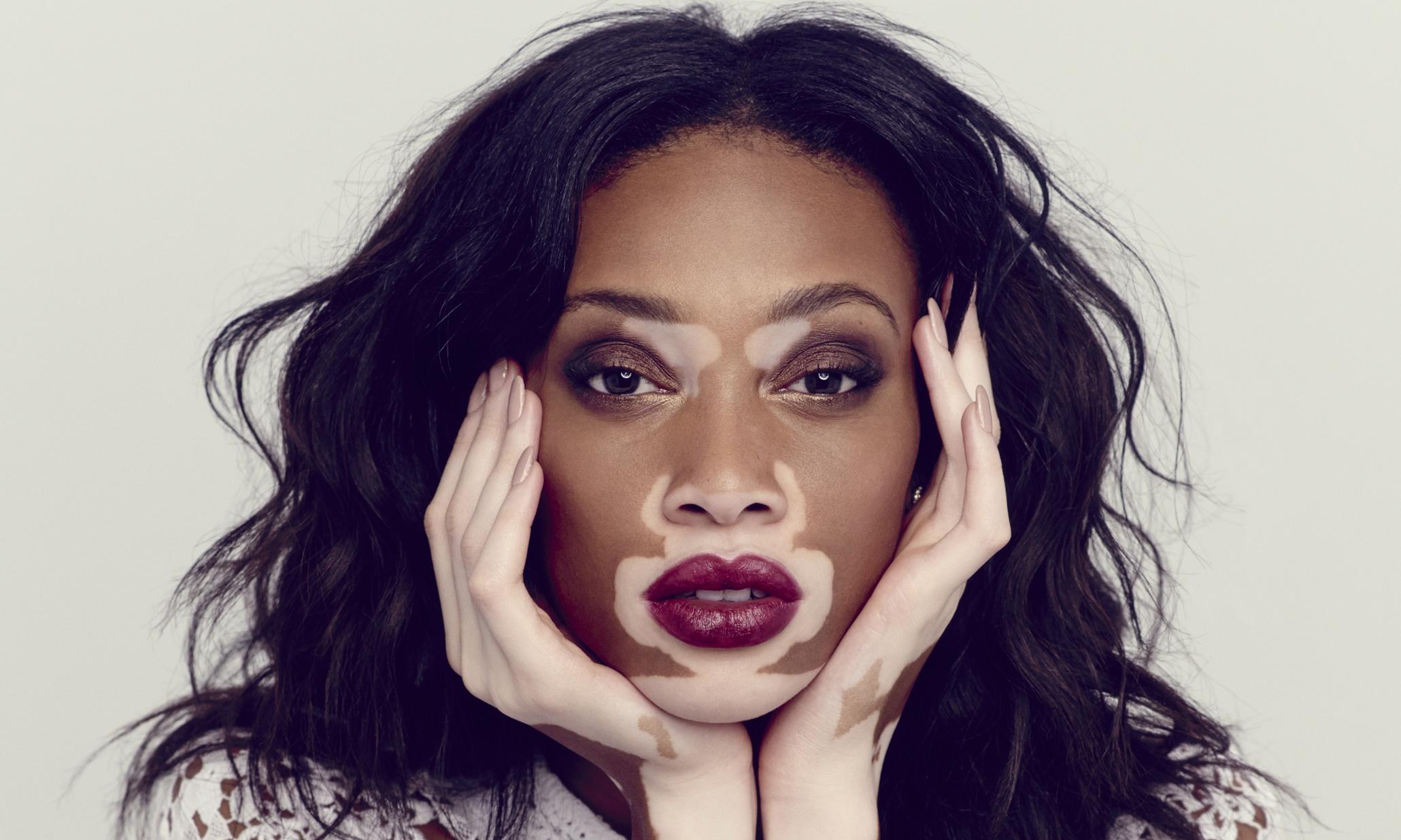 Saiba mais sobre o Vitiligo
